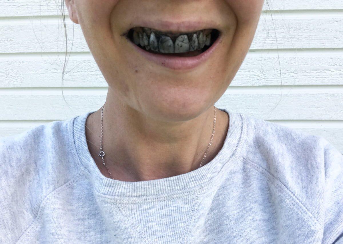 naturlig tandblekning aktivt kol