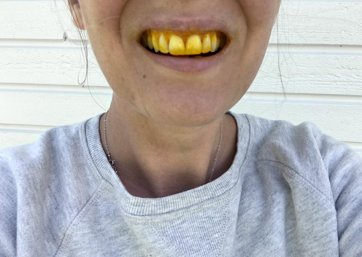 naturlig tandblekning gurkmeja