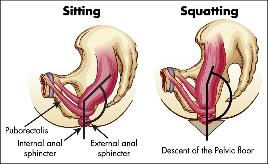 Sittande_squatting